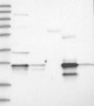 NBP1-89786 - Grancalcin