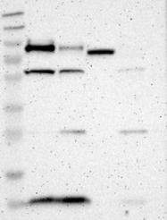NBP1-87324 - Granulins (GRN)