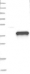 NBP1-88151 - Granzyme B (GZMB)