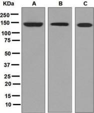 NBP1-95983 - Growth hormone receptor