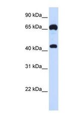 NBP1-58869 - Guanylate cyclase soluble GUCY1B3