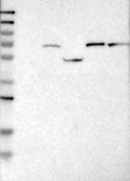 NBP1-89784 - Guanylate cyclase soluble GUCY1B3