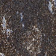 NBP1-90107 - HMHA1 / mHag HA-1