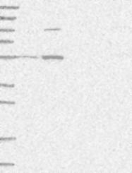 NBP1-89384 - HACL1 / PHYH2