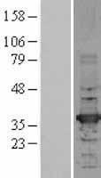 NBL1-11435 - HADH Lysate