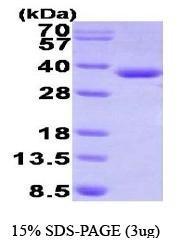 NBP1-41228 - HADH / HCDH