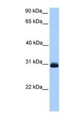 NBP1-56760 - Glyoxalase II / HAGH