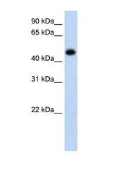 NBP1-55294 - Hydroxyacid oxidase 1 / HAOX1