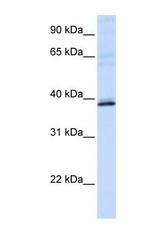 NBP1-53164 - Hydroxyacid oxidase 2 / HAOX2