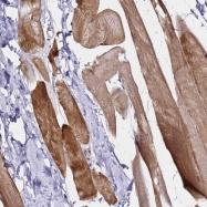 NBP1-91977 - Brain link protein 1 / BRAL1