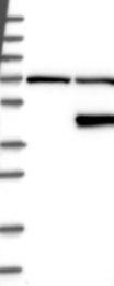 NBP1-83945 - HAPLN3 / EXLD1