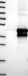 NBP1-88384 - HARBI1