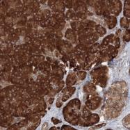 NBP1-89490 - Histidyl-tRNA synthetase / HARS