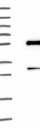 NBP1-81775 - Histidyl-tRNA synthetase 2 / HARS2