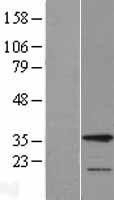 NBL1-11453 - HAX1 Lysate