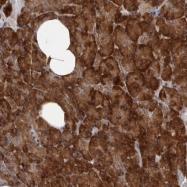 NBP1-85123 - HBS1-like protein