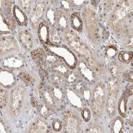 NBP1-85124 - HBS1-like protein
