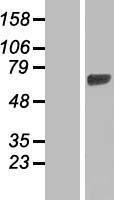 NBL1-11464 - HBS1L Lysate