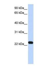 NBP1-53103 - HBX-interacting protein / XIP