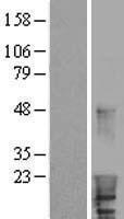 NBL1-11465 - HBXIP Lysate