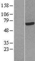 NBL1-15210 - HCC1 Lysate