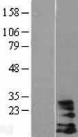 NBL1-11476 - DAP10 / HCST Lysate
