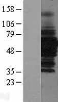 NBL1-11477 - HDAC1 Lysate