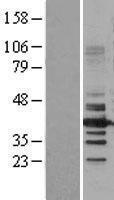 NBL1-11479 - HDAC11 Lysate