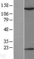 NBL1-11484 - HDAC6 Lysate