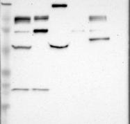 NBP1-85065 - HDAC7
