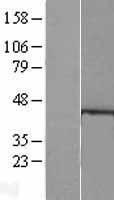 NBL1-11485 - HDAC8 Lysate