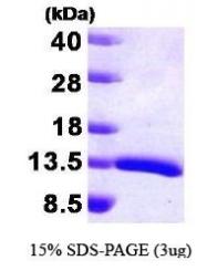 NBP1-30260 - HDGF