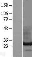 NBL1-11490 - HDGFRP3 Lysate