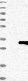 NBP1-86707 - HDHD3