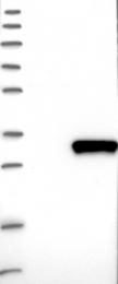 NBP1-86708 - HDHD3