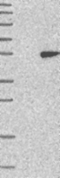 NBP1-88328 - HENMT1 / C1orf59
