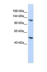 NBP1-58102 - HERC5