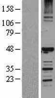 NBL1-11508 - HERPUD1 Lysate