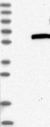 NBP1-83574 - Hexosaminidase D