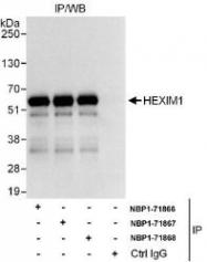 NBP1-71866 - HEXIM1