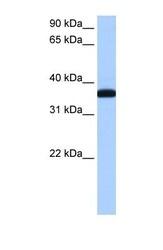 NBP1-57118 - ERI1 / THEX1