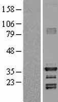 NBL1-11520 - HEY1 Lysate
