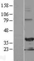 NBL1-11522 - HEY2 Lysate