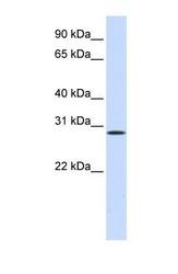 NBP1-58288 - Hepatocyte growth factor / HGF