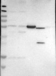 NBP1-82223 - HIATL1