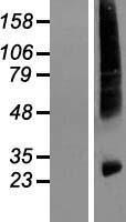 NBL1-11536 - HIATL1 Lysate