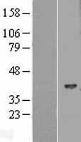 NBL1-11538 - HIBCH Lysate