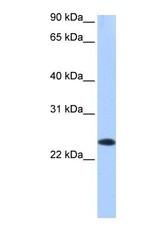 NBP1-54943 - EGLN3 / PHD3