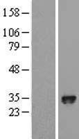 NBL1-10156 - HIF Prolyl Hydroxylase 3 Lysate