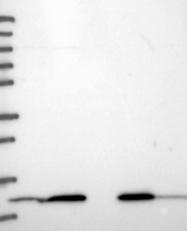 NBP1-83257 - HINT1